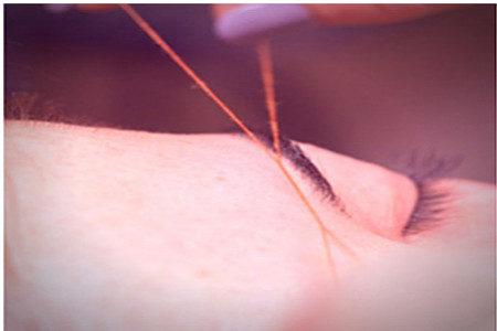 Augenbrauen zupfen mit Fadentechnik
